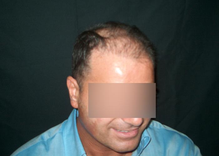 Trattamento di capelli di selettivi