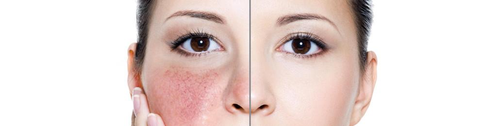 Rosacea trattamento laser