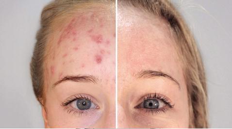 kleresca trattamento dermatologico acne